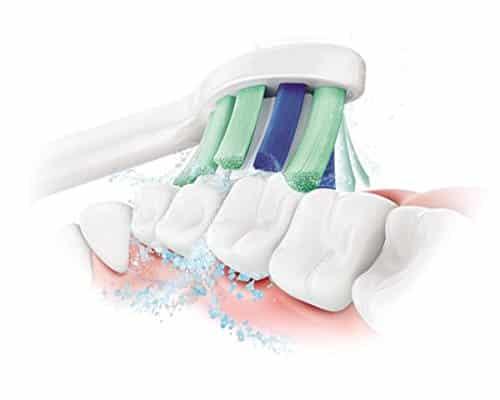 Ici on voit bien à quel point cette brosse à dent peut agir sur une gingivite